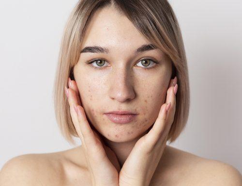 Mejores productos para el acné